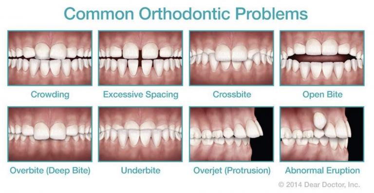 common-orthodontic-problems